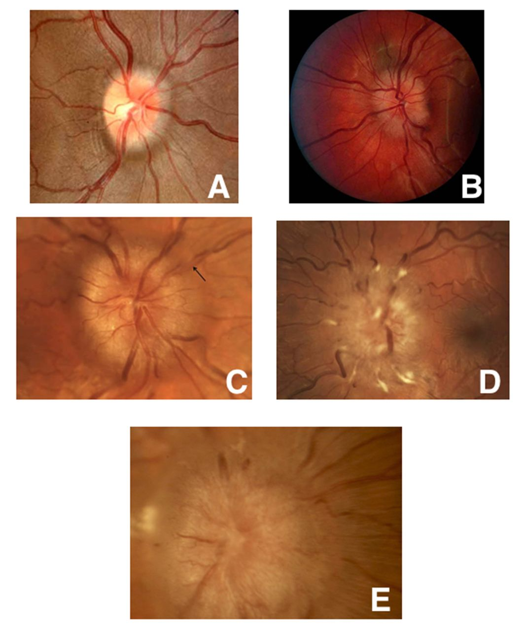 Eyes and stroke: the visual aspects of cerebrovascular